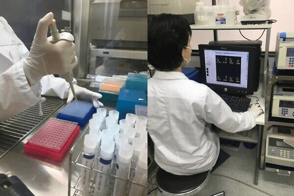 ペルソナ育毛剤の特徴①:AGAクリニックの遺伝子検査より細かく検査