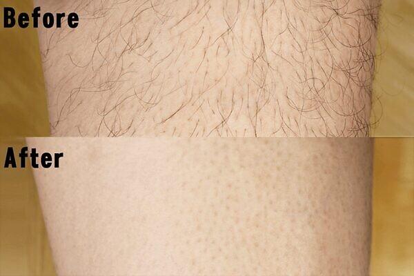 ミュゼコスメ 薬用ヘアリムーバルクリームはワキやVIOなどの太い毛もほとんど綺麗になくなる