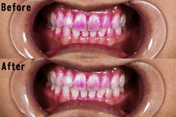 プラーク(歯垢)が減少