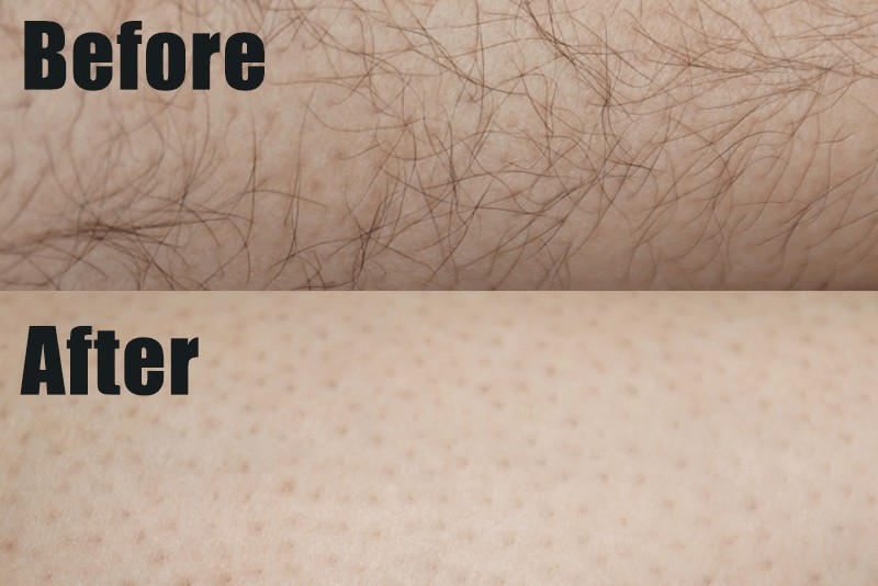 Zリムーバーを使用して根本からしっかり除毛できたことで肌がツルツルに