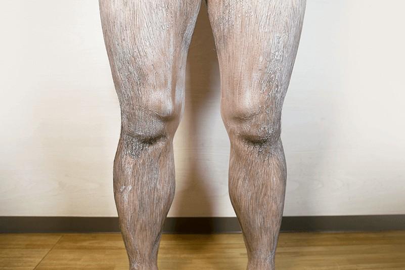 除毛クリーム「Zリムーバー」検証:5分~10分放置し肌への負担が少ないシャワーの使用がおすすめ