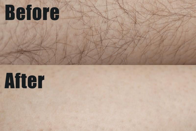 除毛クリーム「Zリムーバー」検証:毛が太い部分は10分程度放置するのがおすすめ