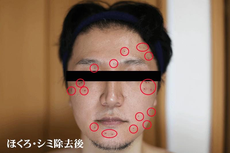 レーザースポットペン(ほくろ除去ペン)の検証者 編集部メンバー30代男性